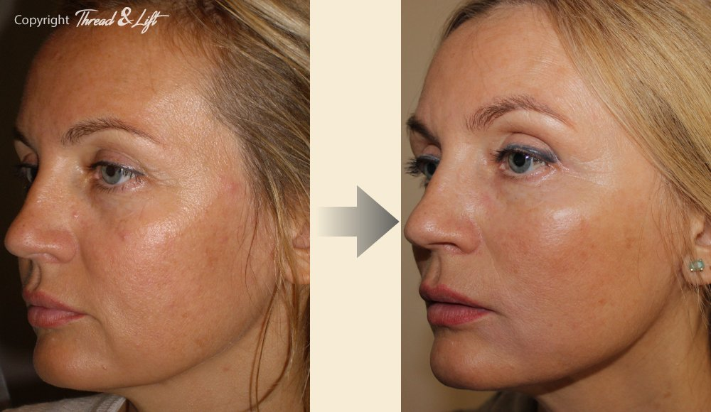 Thread & Lift - The 1st real facelift without surgery